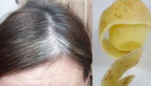 potato-peel-for-grey-hair-580x305