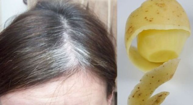 potato-peel-for-grey-hair-580x305